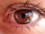 soczewka w oku